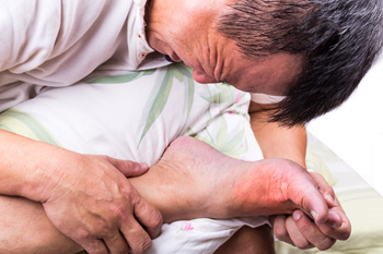 Two Categories of Gout