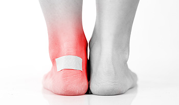 How Exactly Do Blisters Form?