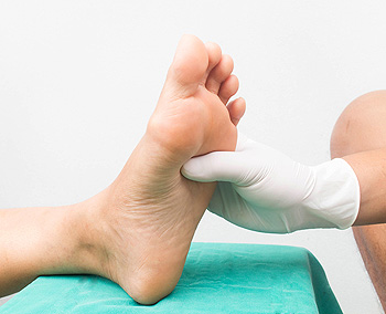 How Peripheral Neuropathy May Affect Your Feet