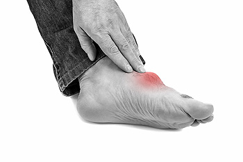 What Does Uric Acid Have to Do with Gout?
