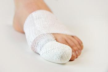 Is My Toe Sprained or Is It Broken?